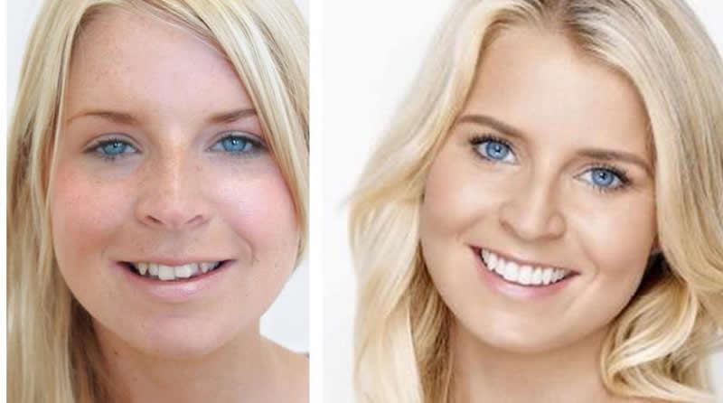 confident-wedding-smile-before-after